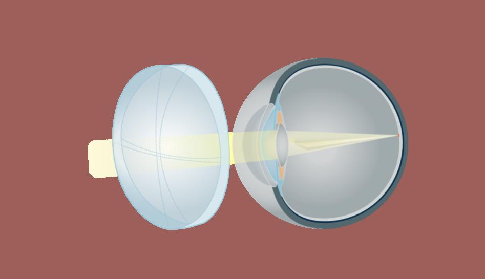 98pdid2-ak-astigmatizmas-su-akiniais_7042-4fd59092132235869c7040ee50556df5.png
